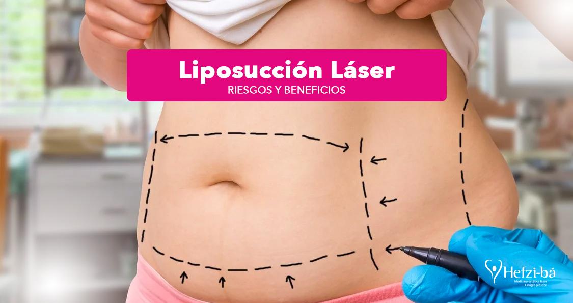Liposucción laser
