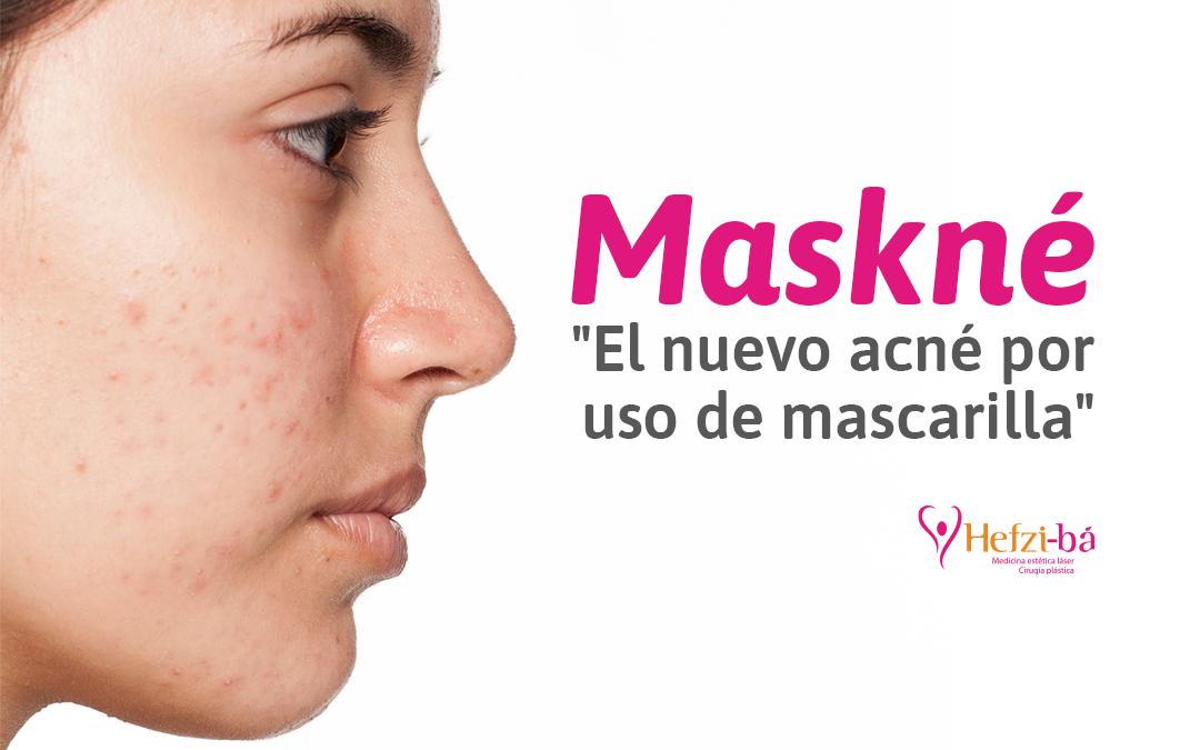 Maskné, el nuevo acné por uso de mascarilla